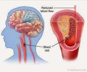 merawat stroke