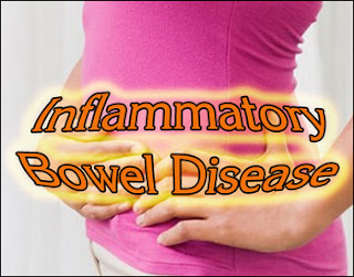 Inflammatory Bowel Disease, Crohns disease