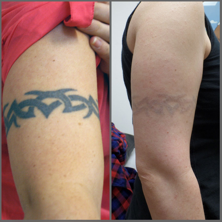 Tattoo Removal Before And After Reviews & Tips