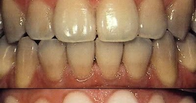 Чешутся зубы у беременных 44