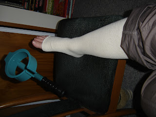 My right leg encased in a pressure bandage from toe to thigh, immobilized, with crutches poised and ready