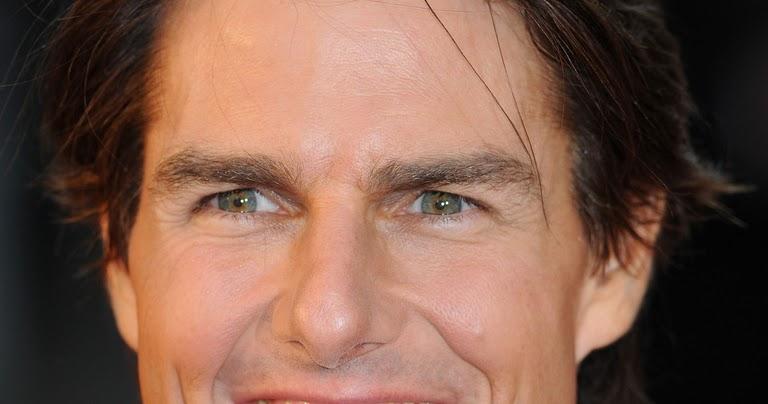 celebrity hair loss tom
