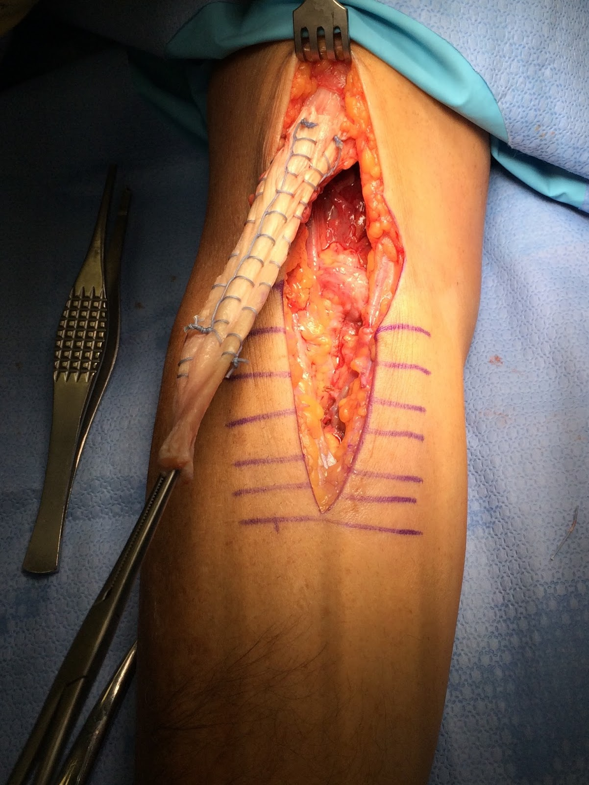 Dr Frisella Shoulder Surgery Distal Biceps Repair With