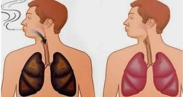 poumons sains et poumons touchés