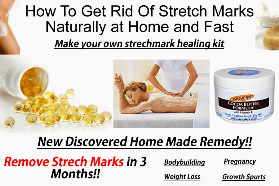 Natural Ways To Remove Stretch Marks