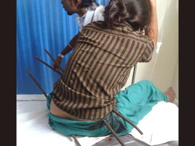 Pictured: Girl Impaled On Three Metal Rods… And She Survived