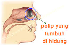 Cara Menghilangkan Polip Hidung