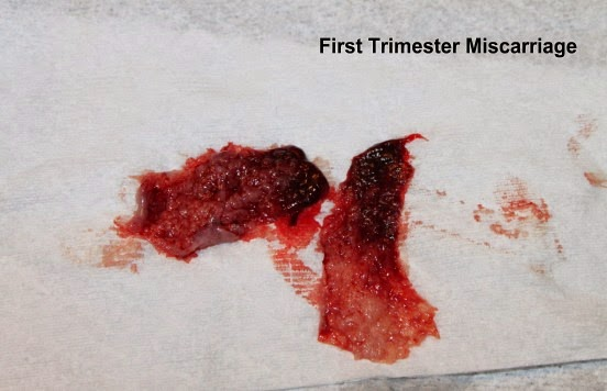 First Trimester Miscarriage