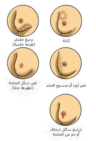 سرطان+الثدي+13 تعرفي على سرطان الثدي ,مدعم بصور توضيحية