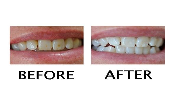 Comment liminer les taches jaunes sur les dents conseils pour vous - Comment enlever une tache de cafe ...