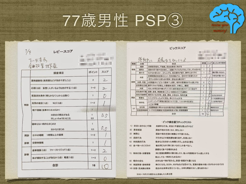 進行性核上性麻痺(PSP) レビースコア ピックスコア