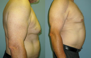 Celebrities and Gynecomastia- san jose, CA