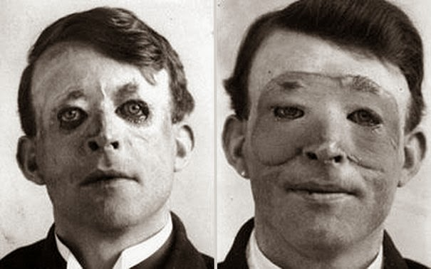 40 Must-See Photos Of The Past - Walter Yeo, one of the first to undergo an advanced plastic surgery and a skin transplant, 1917