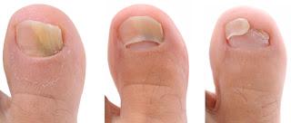 treat toenail fungus fast
