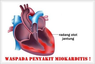 Cara Menyembuhkan Penyakit Miokarditis