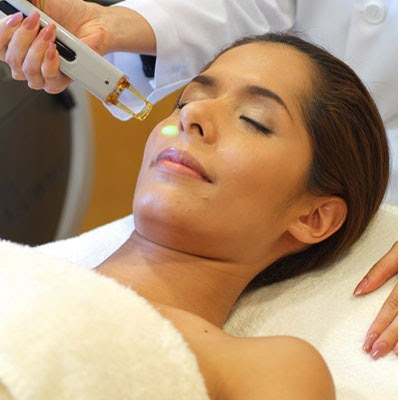 CO2 laser treatment acne scars