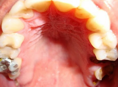 Sharp Pain In Teeth When Drinking Water