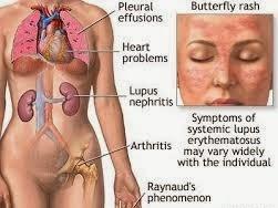 Makalah Sistemik Lupus Eritematosus