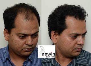 hair loss treatment, hair loss in women