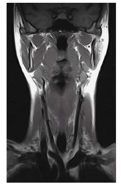 Компьютерная томография мягких тканей шеи
