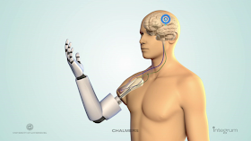 implanted robotic prosthetic