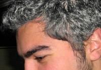 هل تعرف ما هى أكثر الاسباب التى تؤدى إلى شيب شعر الرأس و طريقة علاجها !!!