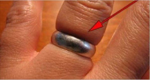 How To Get A Ring Off Your Finger It S Swollen