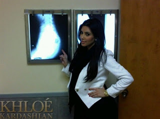 Kim Kardashian has bottom x-ray to prove it is real