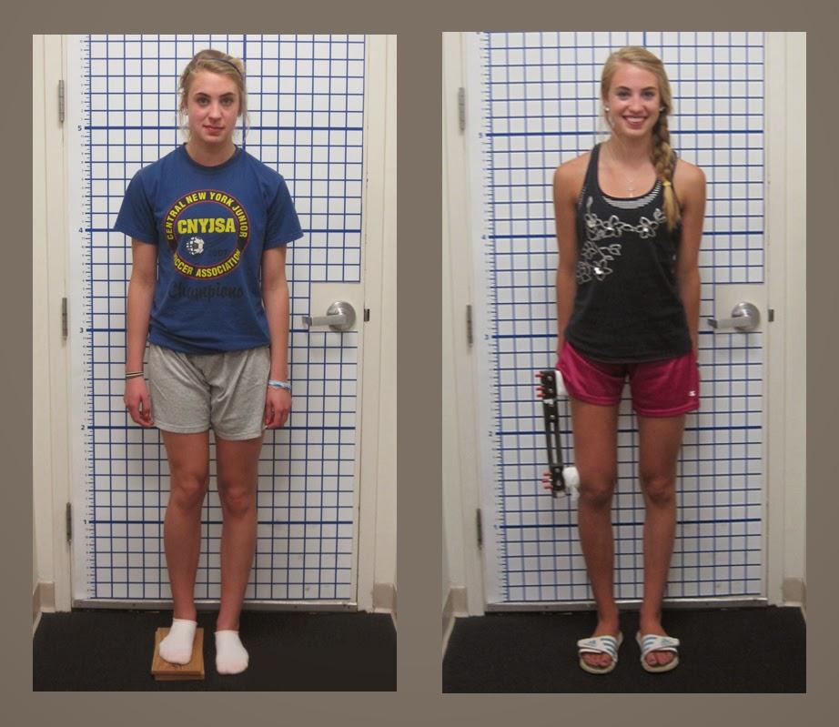 http://orthopedicsindia.com/deformity-correction-arm-leg-length-discrepancies.html