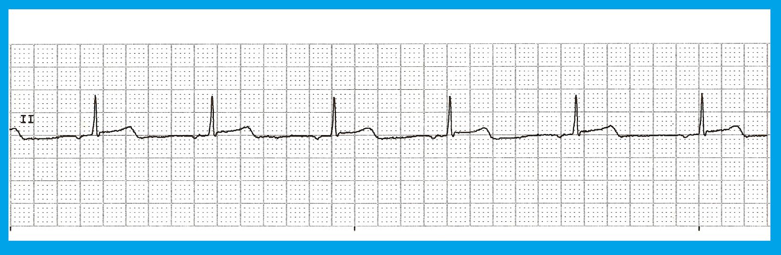 Float Nurse: Basic EKG Rhythm Test 25