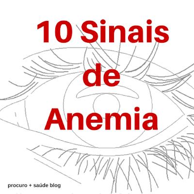 10 sinais e sintomas de anemia