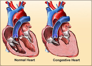 Nursing Assessment for Congestive Heart Failure