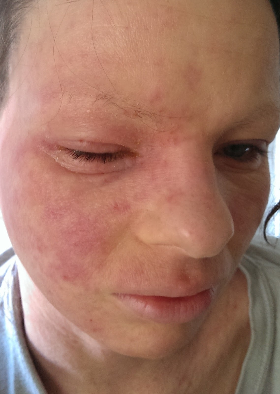 steroid cream for herpes zoster