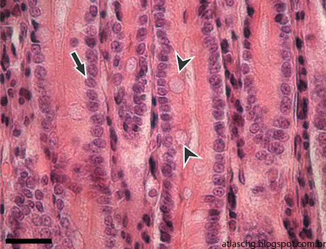 Corte de intestino delgado (jejuno-íleo) - Tecido epitelial de revestimento simples prismático com borda estriada e células caliciformes