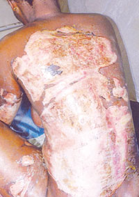 Jealous husband sets wife on fire for accepting wine from another man at party