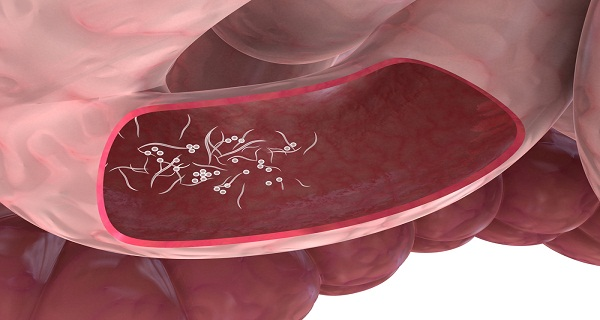 Parasites ''EAT'' The Body – This is How To Clean your Organism from Parasites
