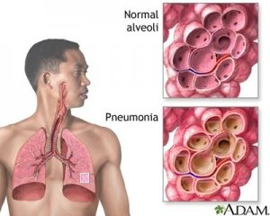 Pengobatan Alami Penyakit Bronkitis