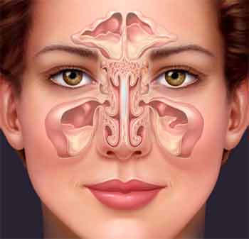 Sinus infection no pain