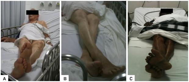 足を交差する脳卒中患者