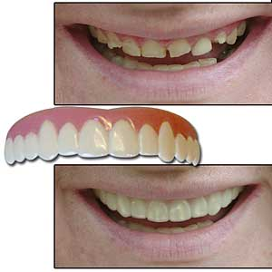 Removable veneer teeth diy at home in under 1 hour juicy the front of these removable veneeriline teeth look like a set of perfect teeth and gums if you went to a dentist they would charge you at least 2000 for solutioingenieria Image collections