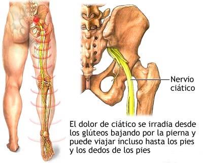 Los dolores en los pies y los riñones del cóccix