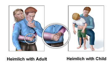 Image Result For Can You Heimlich