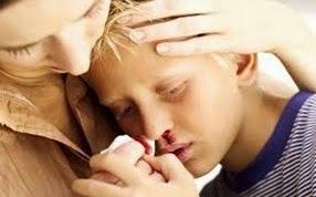 Manfaat Susu Haji Sehat utk Pendarahan Hidung  (Mimisan)