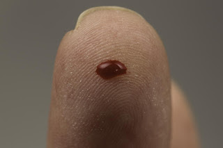 New Test Uses One Drop Of Blood To Detect Cancer