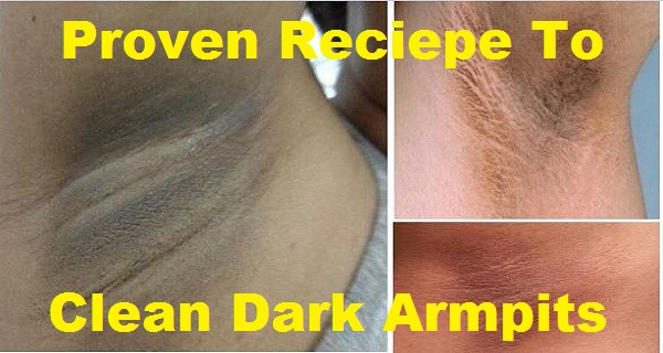 proven-recipe-that-will-easily-clean-dark-armpits