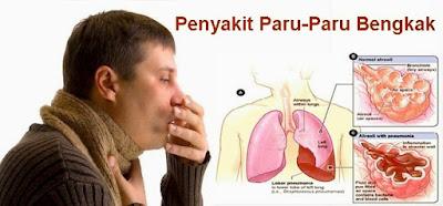 obat herbal paru-paru bengkak