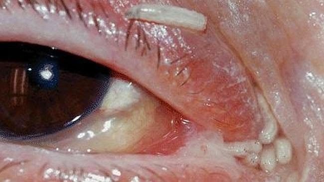 120 Maggots Removed From Hospital Patient's Nose And Eye After Fly Lays Eggs