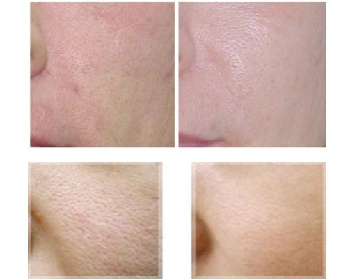 Se khít lỗ chân lông hiệu quả với 6 phương pháp tự nhiên