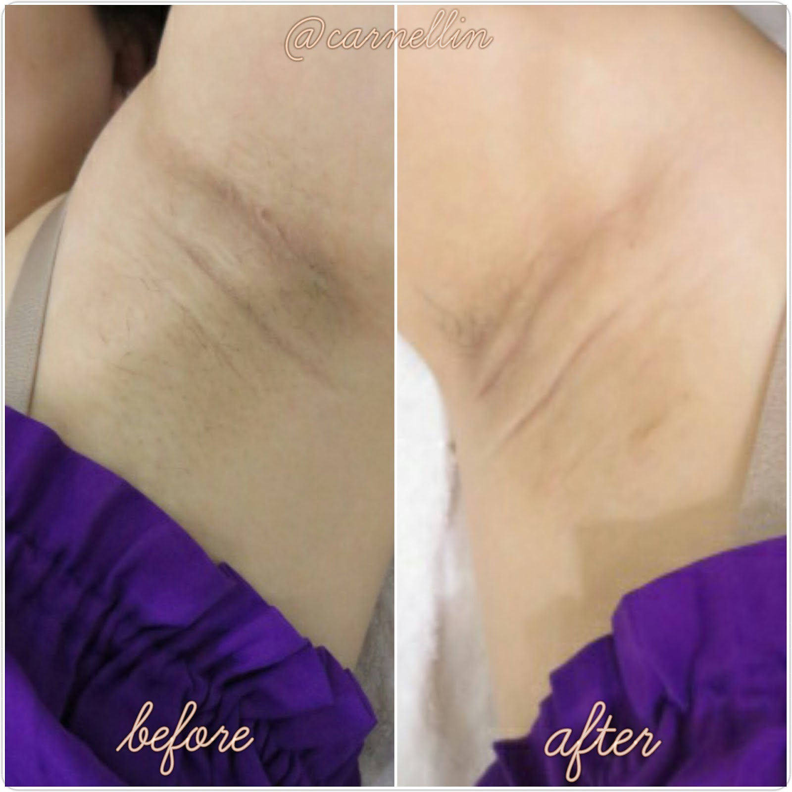 And above is my underarm condition before and after the treatment The treatment itself is really fast around 15 minutes Which include cleansing applying
