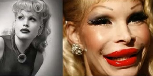 Celebrity before and after plastic surgery disasters for Looking glass plastic surgery tattoo removal